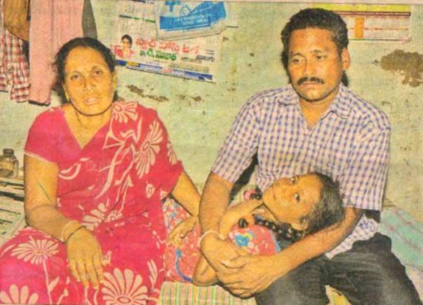 Please help 13 year old Jahnavi, she needs kidney transplantation