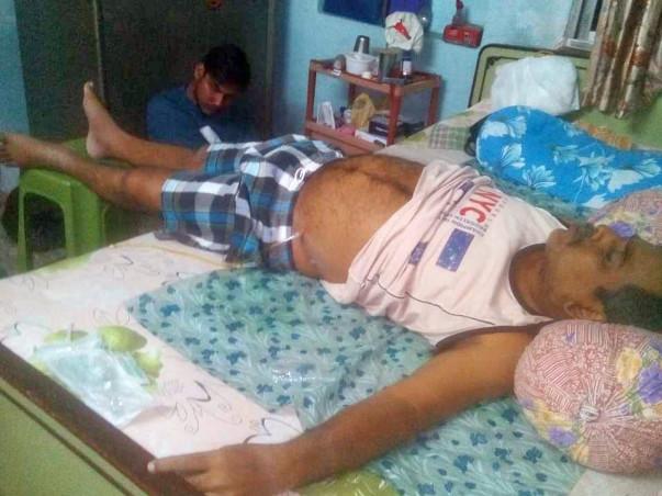 Help my husband Sujit Basak to Undergo A Liver Transplant.