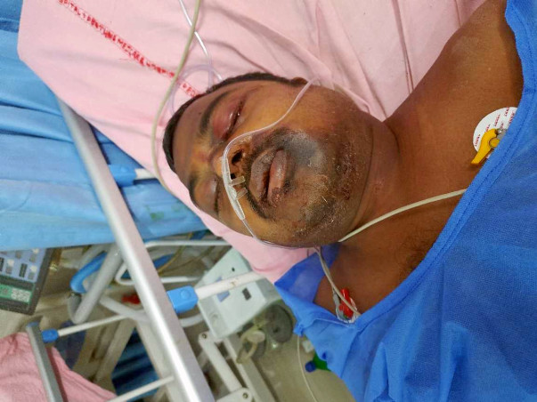 My Brother Needs Your Urgent Support In Fighting Accident (Brain And Face Injury)