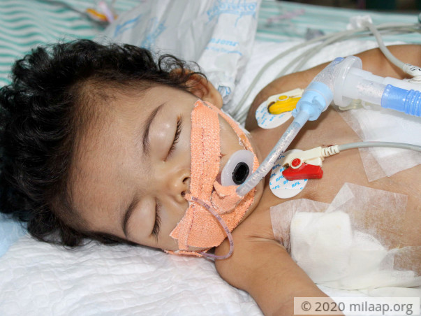 Baby Girl Who Can't Eat Or Breathe Needs Urgent Help To Live