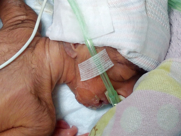 Help for my premature baby of low birth weight due to born at 28 weeks
