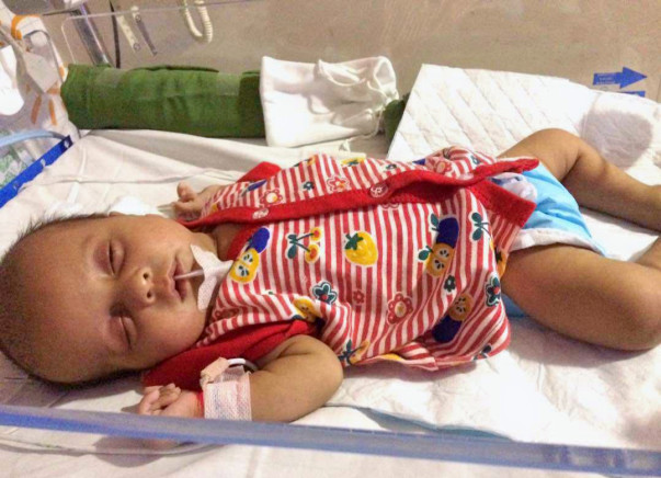 Baby Jenus Is Struggling To Breathe- His Family Needs Your Help