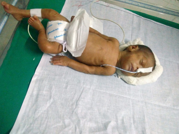 Help Baby suba fighting for life