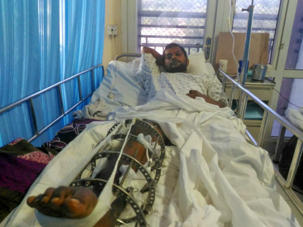 Cancer affected leg broken into pieces. I need to recover