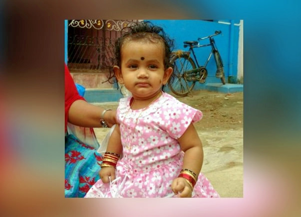 Save Baby Akshaya From Severe Scald Burns