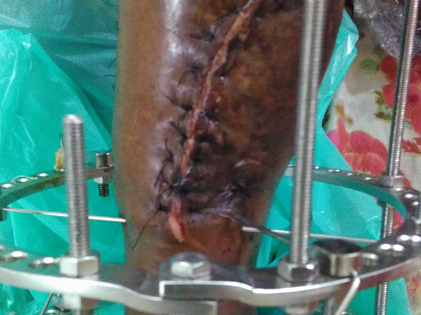Help Me To Undergo Treatment For My Right Leg Fatal Accident