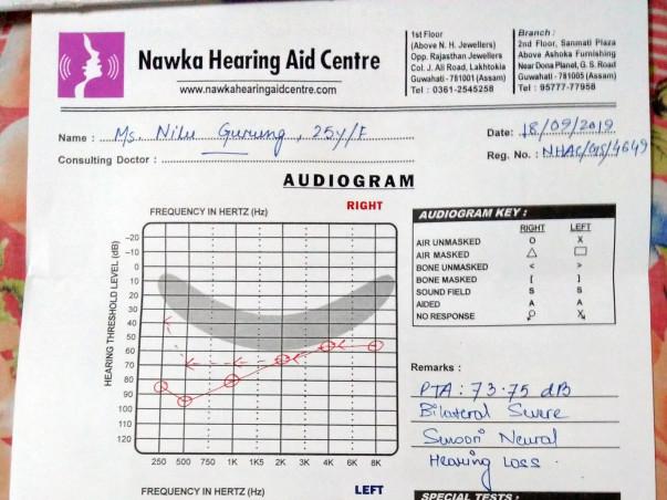 Help My Sister Fight Bilateral Sensorineural Hearing Loss.
