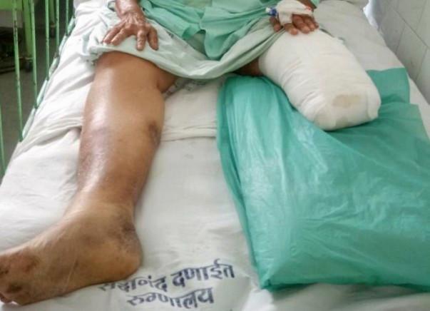 Help Vijaya Shenoy with Rehabilitation