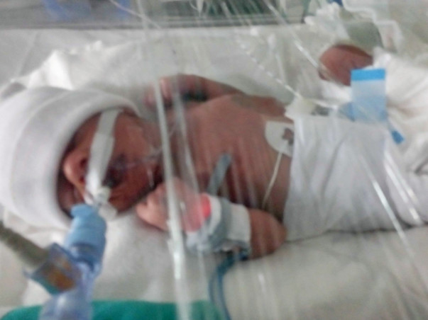 Help 5 days old boy fighting with Respiratory distress