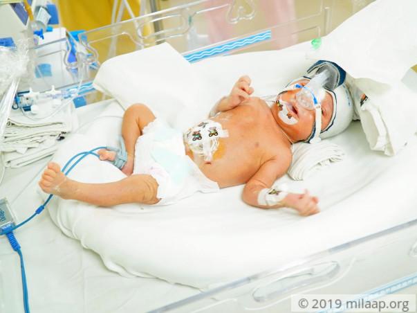 Baby of Teeja  needs your help to survive