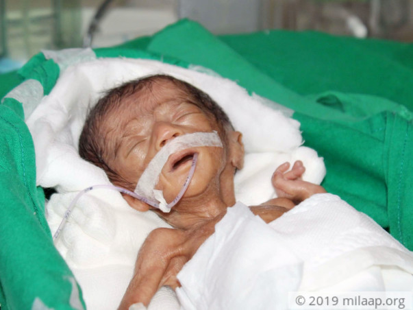 This Fragile Newborn Twin Is Just 580 grams And Is Fighting To Live