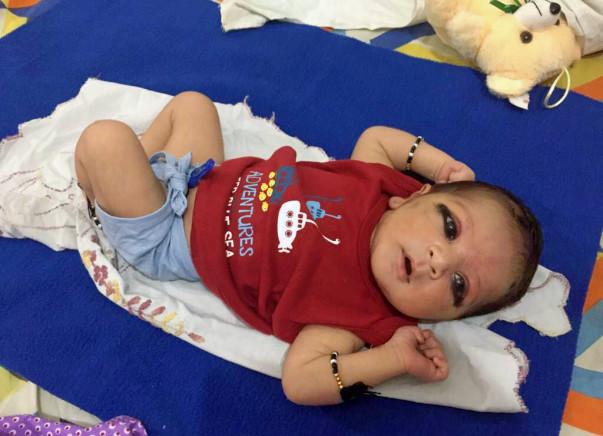 Help 25-days-old Baby Krishna Get Open Heart Surgery