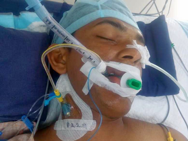 Help Sai Teja Recover From Accident And Live a New Life!