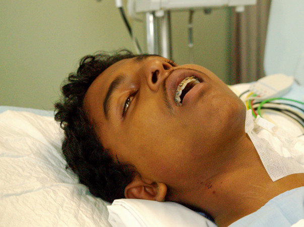 17-year-old Who Consumed Rat Poison Has 24 Hours To Get A New Liver