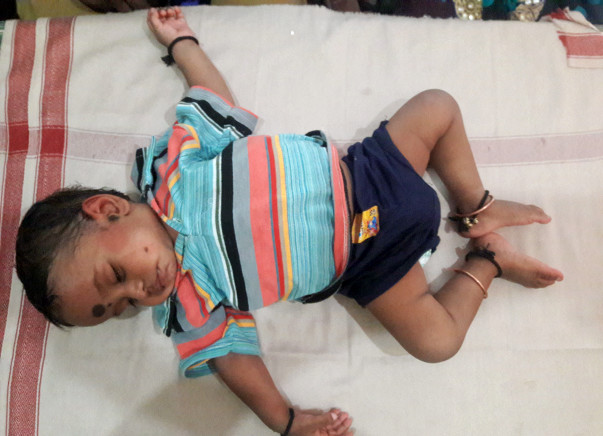 Help Vignesh Fight Intestinal Lymphangiectasia