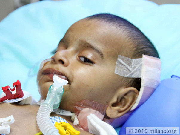 Sharvesh's brain tumor has paralysed him, he needs help to live