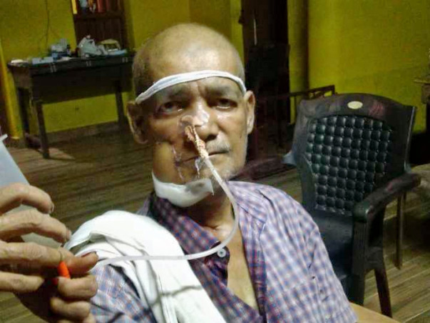 Help Shashiraj Fight Mouth Cancer
