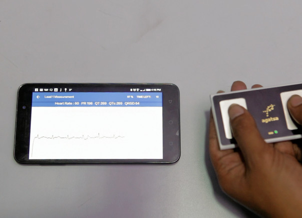 Help Bring Pocket Sized ECG Monitors To The Underprivileged