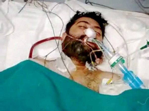 LUNG TRANSPLANT THE ONLY RAY OF HOPE FOR TARUN