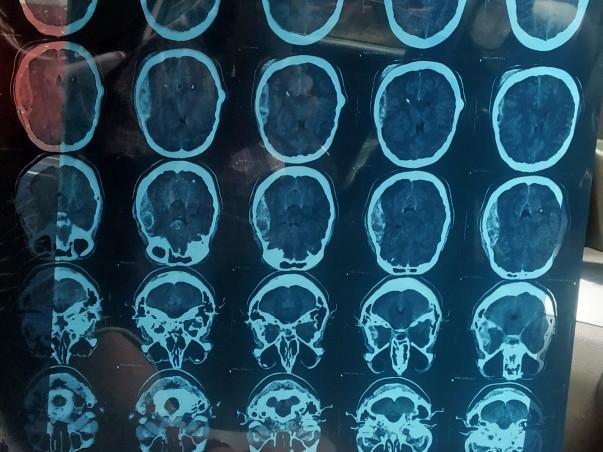 Help Surjit Recover From Brain Trauma Injury