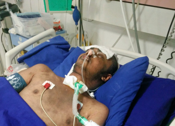 Save My Brother From Brain Haemorrhage