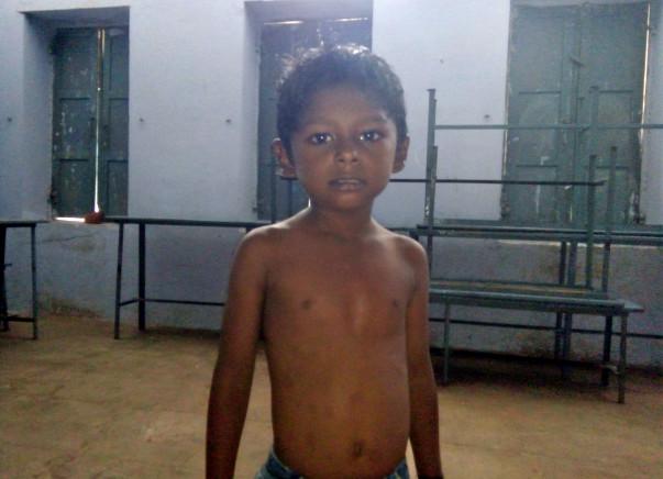 Help 5-year-old-Annamalai undergo heart surgery