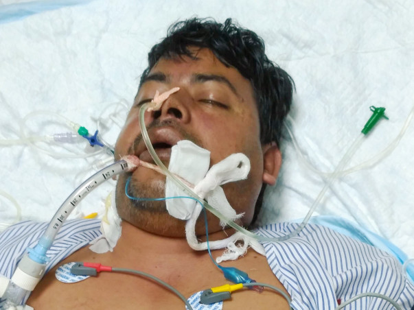 After a severe dengue attack Shankar now fights for his life