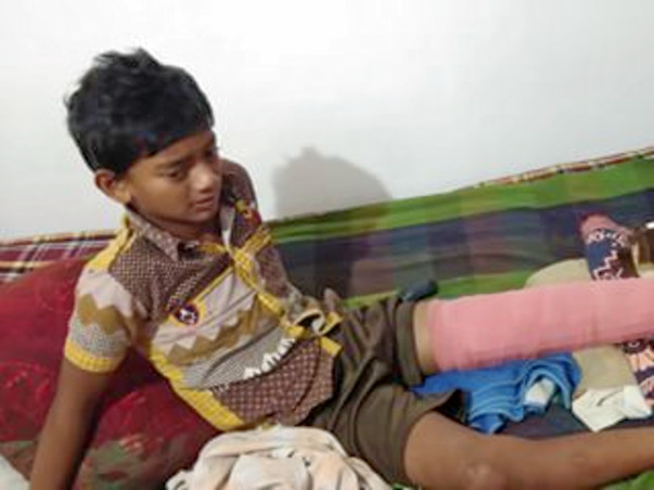 Help My Watchman's Young Child Raise Funds For His Broken Leg