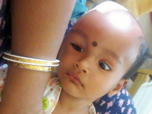 Baby Arohi is suffering from a severe brain condition and needs help