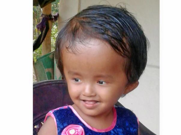 Help Little Reshmi Fight Hydrocephalus