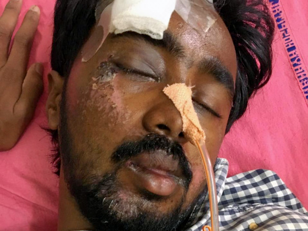 Help Chilakabathula Gopi met with an accident