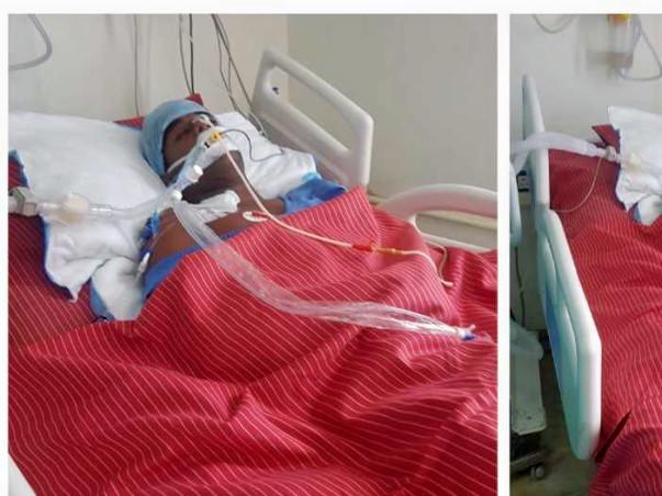 Help Kishore Kumar from Brain Clotting