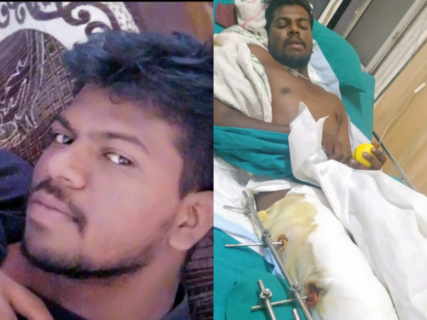 Help Loganathan to get treated