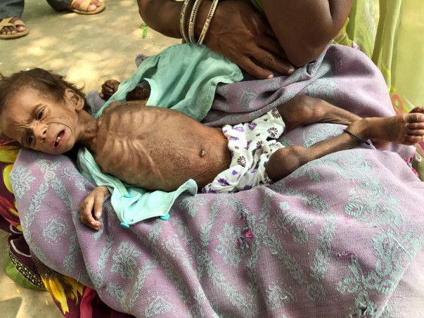 Save lives of 200 malnourished children in Rajasthan