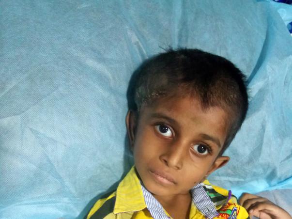 7-year-old Jayamathi Needs Help To Beat A Painful Brain Tumour.
