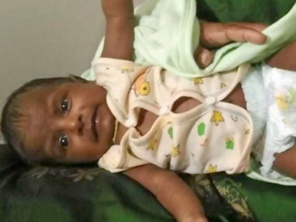 Kalimuthu's baby was born with a heart disease and is now in the ICU