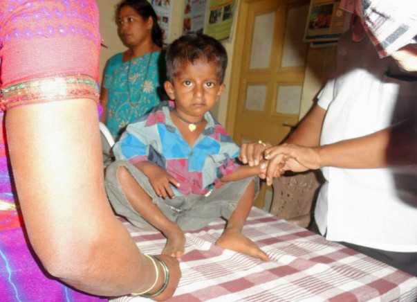 We are fundraising to provide nutritious food supplements to malnourished children in rural Maharashtra. Please join the project.