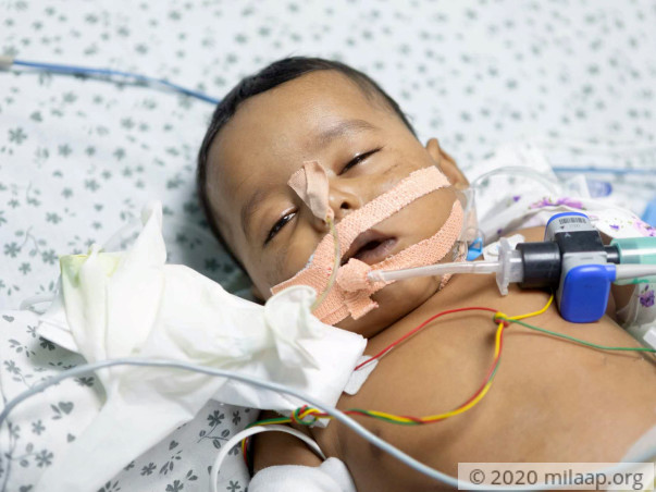 Jasvin Nagineni is in the ICU and need your help to survive