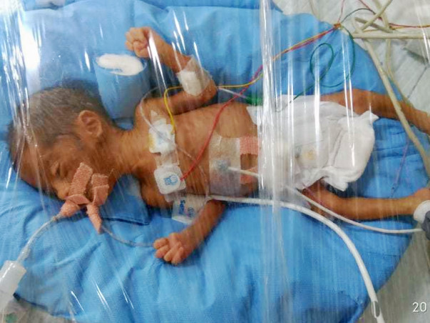 Help My Babies To Get Rid From Respiratory Distress Syndrome