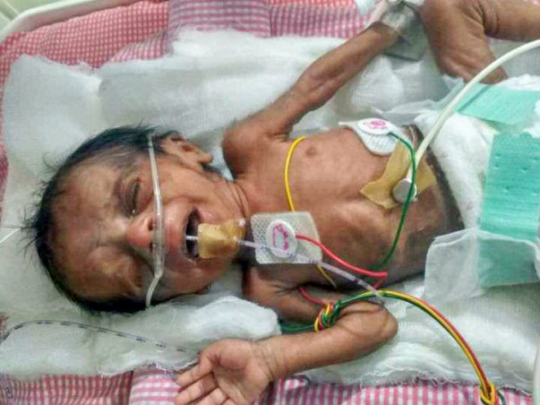 Sunita and Srinivas are struggling to save their prematurely born baby