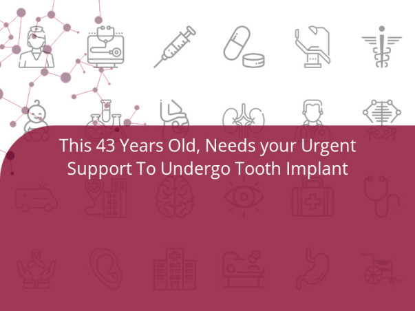 This 43 Years Old, Needs your Urgent Support To Undergo Tooth Implant