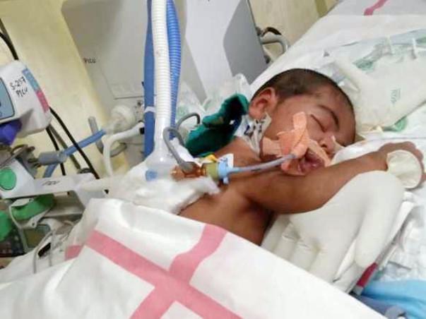 B/o Anu suffering from Pneumonia/Respiratory failure/PAH