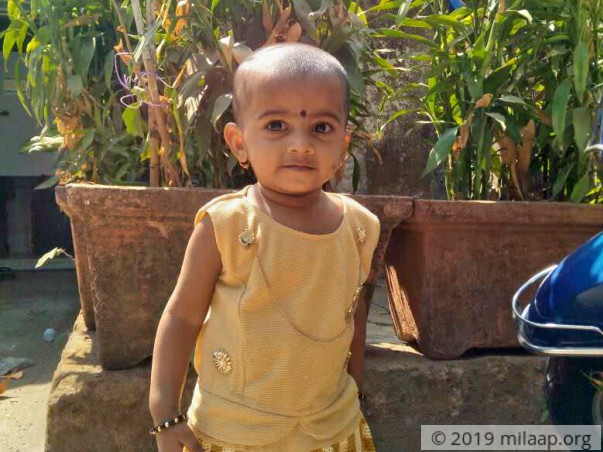 Help 1-Year-Old Diksha Get A Life-Saving Heart Surgery