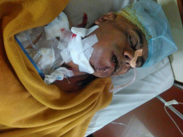 Help My Uncle Ashwinbhai fight Against Mouth Cancer