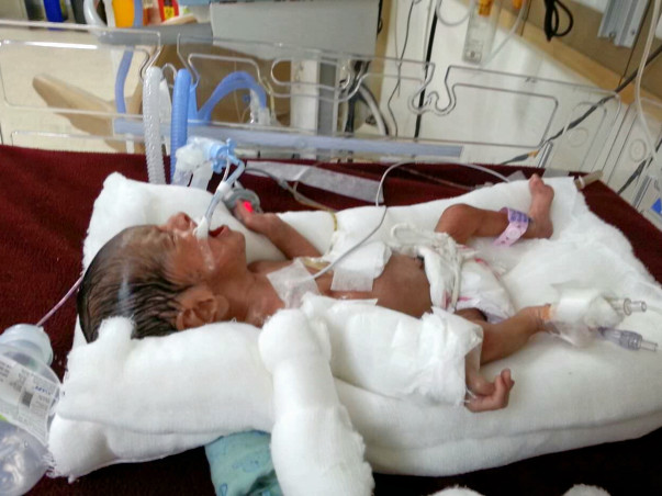 2 Wks Old Baby is Critically Ill & On Ventilator Needs Your Help