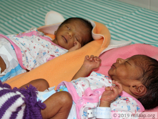 Even Their Parents' Touch Can Be Fatal For These 15-Day-Old Twins