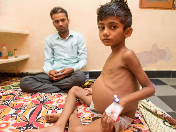 This 6-Year-Old Has A Watermelon-sized Belly And His Life Is In Danger