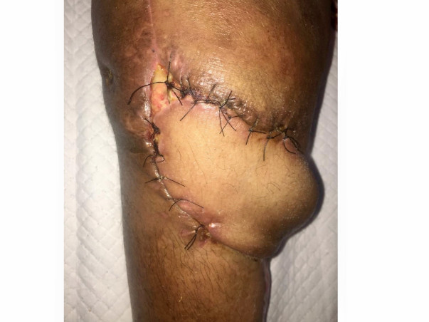 Support My Mother in Fight From Knee Infection because of Surgery