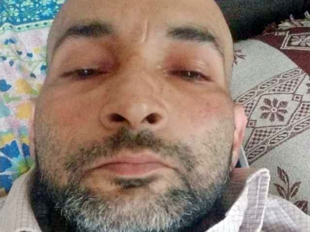 Shardendu Is Fighting Squamous Cell Carcinoma, Help Him.