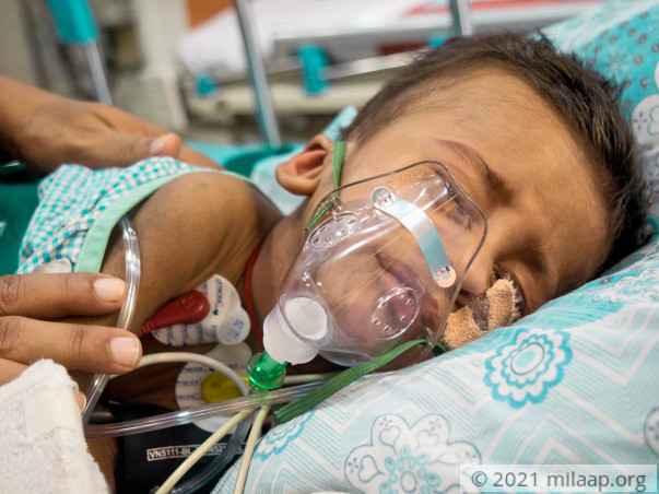 Pneumonia Has Left This 11-Month-Old Face To Face With Death
